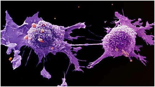 研究人员发现被称为丝状伪足的突起可驱动稀有肺癌细胞的侵袭行为