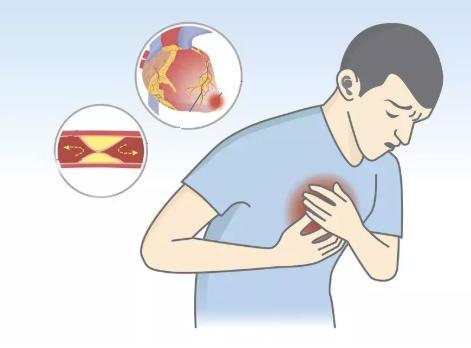全球超过一半的心血管疾病死亡发生在亚洲