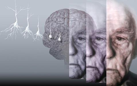 新疗法阻止猴子大脑中阿尔茨海默病的进展