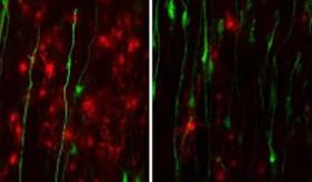 星形胶质细胞在亚历山大疾病中的作用揭示