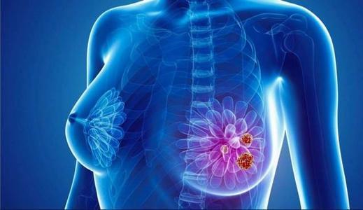 在医疗补助覆盖范围扩大的州 早期诊断出患有乳腺癌的妇女