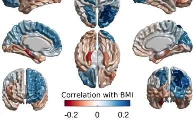 肥胖 大脑与遗传学之间的联系