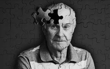 FDA 顾问小组成员概述了aducanumab批准治疗阿尔茨海默病的问题