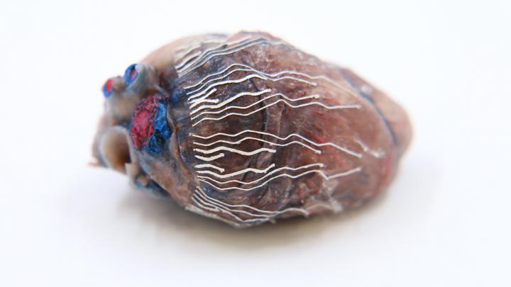 薄的 可拉伸的生物传感器可以使手术更安全