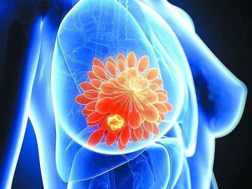 研究发现生育药物不会增加患乳腺癌的风险