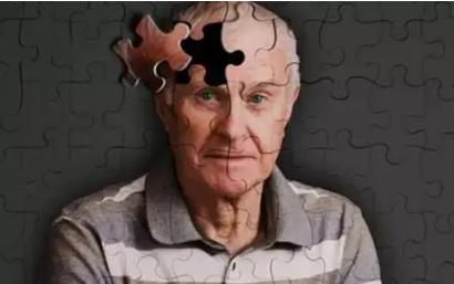 视网膜层的粗糙度是一种新的阿尔茨海默氏症生物标志物