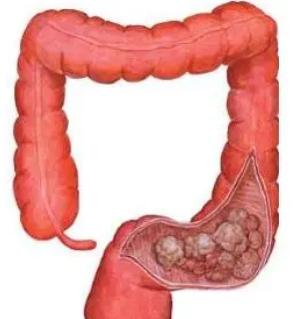 全民医疗保健有益于结肠癌的生存