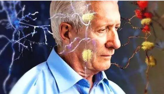 运动的潜意识变化可以预测阿尔茨海默病