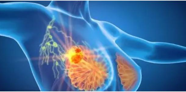 富含Omega-3脂肪酸的母亲饮食可以保护后代免受乳腺癌的侵害