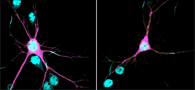 科学家发现新神经发育综合征的遗传原因和潜在机制