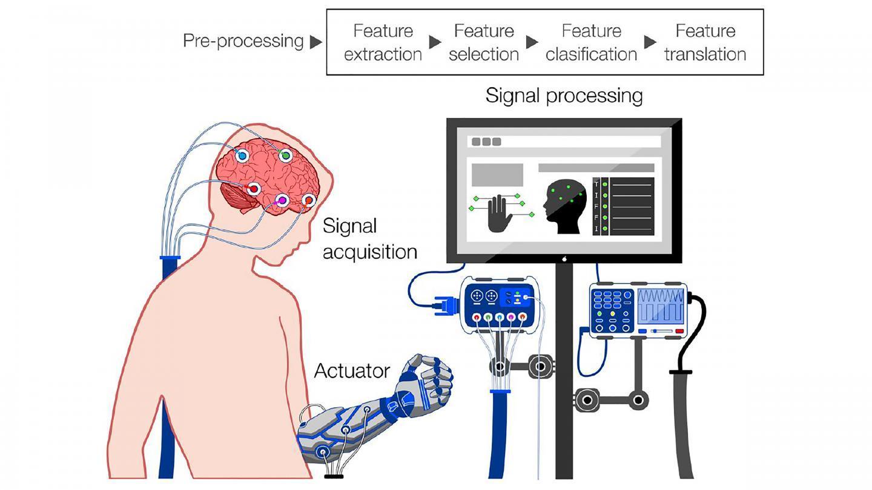 如果我们不小心脑机接口将导致半机械人的黯淡未来