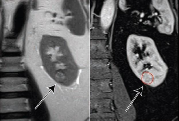 MRI透明细胞与肾脏肿块生长率相关