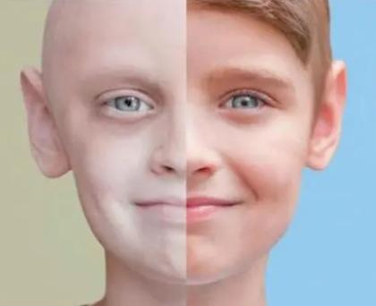 遗传学家揭示了突变如何导致儿童癌症