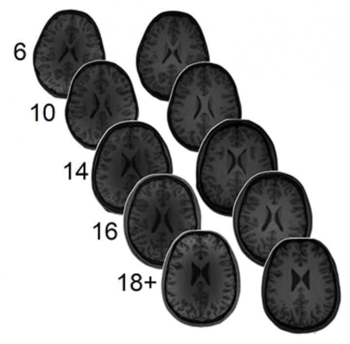 大脑中的谷氨酸和GABA与数学能力呈反向关系