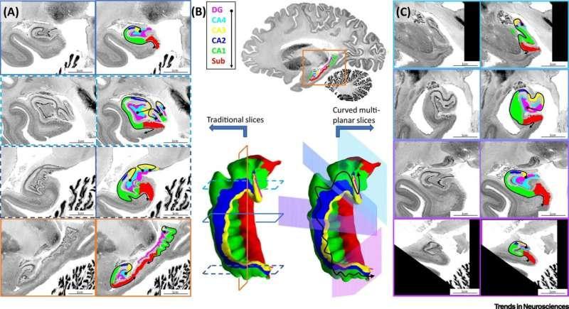 恒达登录注册以数字方式展开海马体可以更好地了解脑部疾病