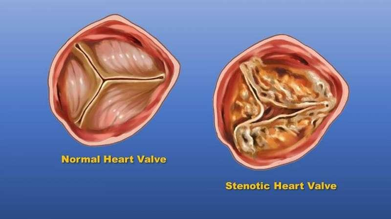 种族和民族可能会影响心脏瓣膜功能障碍的患病率和治疗