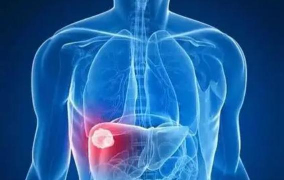 无线电波治疗对肝癌患者是安全的