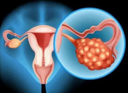 UT Southwestern在卵巢癌中发现了重要的新分子机制和生物标志物