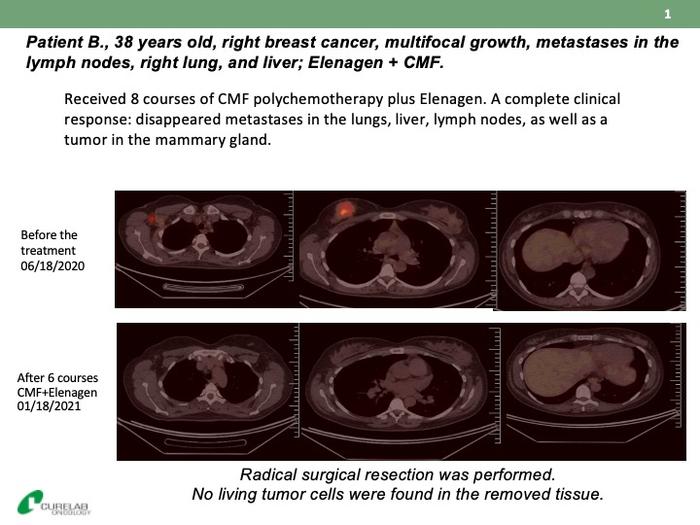 研究人员将抗激素前列腺癌和乳腺癌添加到临床研究中