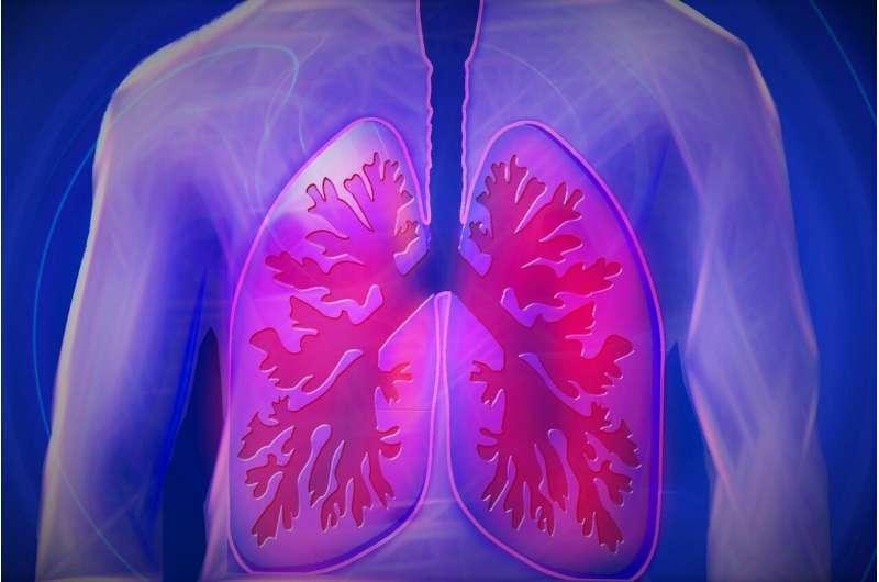 研究人员发现硬皮病患者肺部疾病的潜在生物标志物