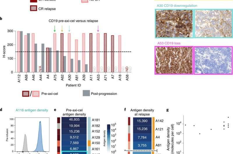 研究预测谁可能受益于CAR-T细胞疗法治疗血癌