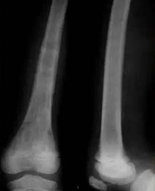 新的PIDS-IDSA儿童骨感染指南解决了关键的诊断和治疗问题