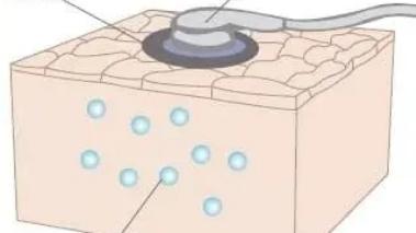 研究人员发现如何在不使用粘合剂的情况下将传感器粘在皮肤上