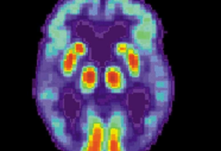 新发现增加了治疗阿尔茨海默氏症 帕金森氏症的新药的可能性