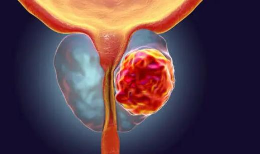 某些前列腺癌幸存者在治疗后很长时间仍然担心癌症复发