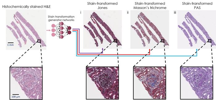 人工智能重新染色组织活检图像加快诊断