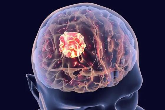 如何才能从根本上抗击脑癌