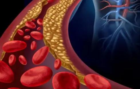 即使是低水平的空气污染也会增加患心血管疾病的风险