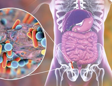 肠道菌群组成可能会影响对康佐的易感性