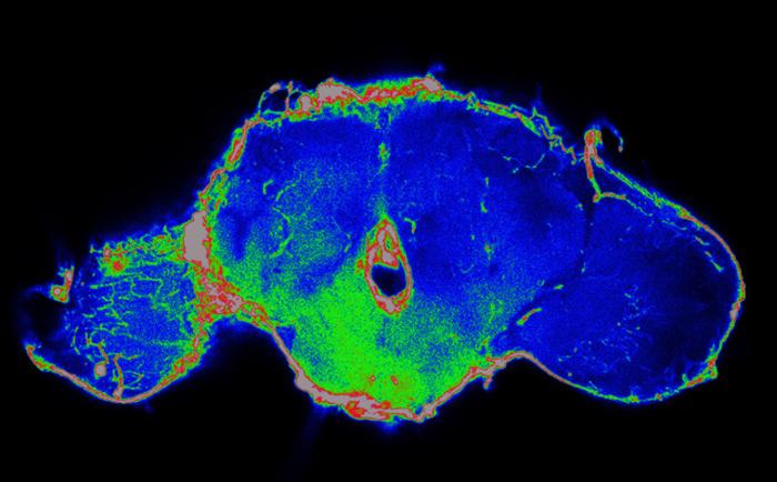 果蝇研究能否帮助提高癌症患者的生存率