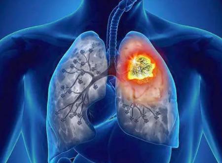 研究表明新的药物组合可改善晚期肺癌患者的预后