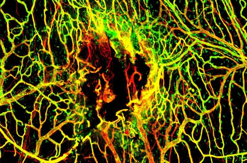 创伤性脑或脑血管损伤后感染阻碍血管修复