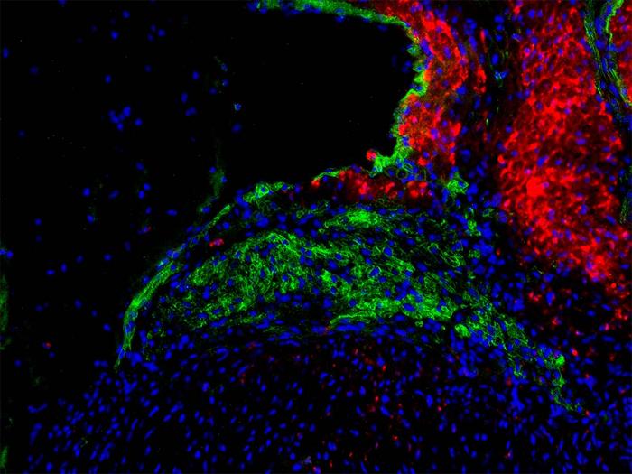 UT西南科学家的研究表明传播心跳的特殊细胞具有在出生后再生的能力