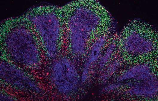 迷你大脑暗示了运动神经元疾病和额颞叶痴呆的潜在治疗选择