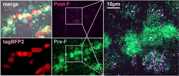 病毒颗粒的形状可能决定呼吸道合胞病毒感染的结果