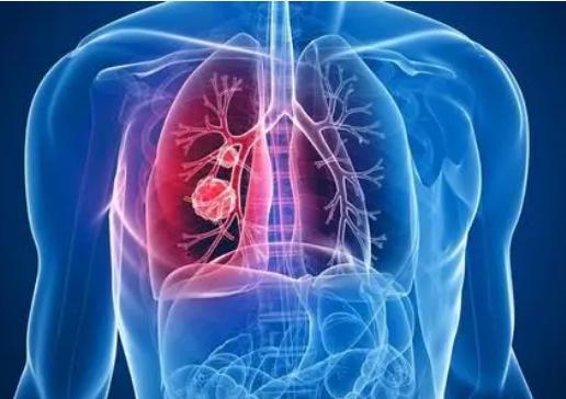 虚拟肺癌筛查与面对面筛查一样有效
