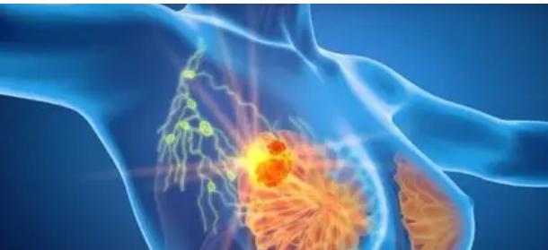 手术对接受全身治疗的男性 IV 期乳腺癌患者有生存益处