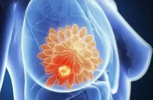 乳腺癌研究收集数据以帮助女性了解手术后的健康结果