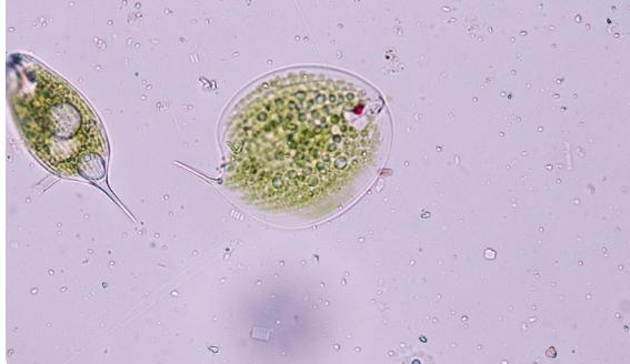 科学家在理解青霉素如何发挥作用方面取得突破