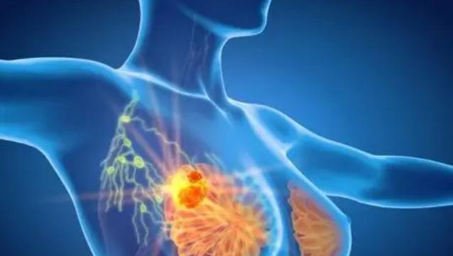 加州大学发现针对乳腺癌患者的新型个性化疗法