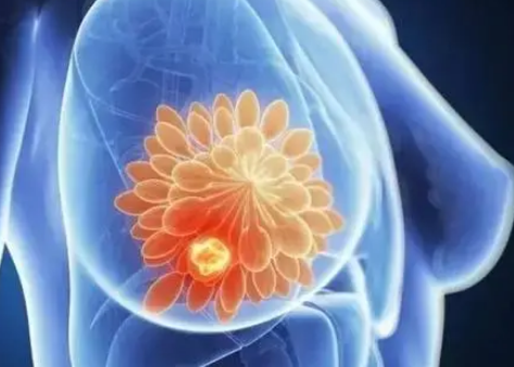 干预消除了早期乳腺癌和肺癌生存率的黑白差距