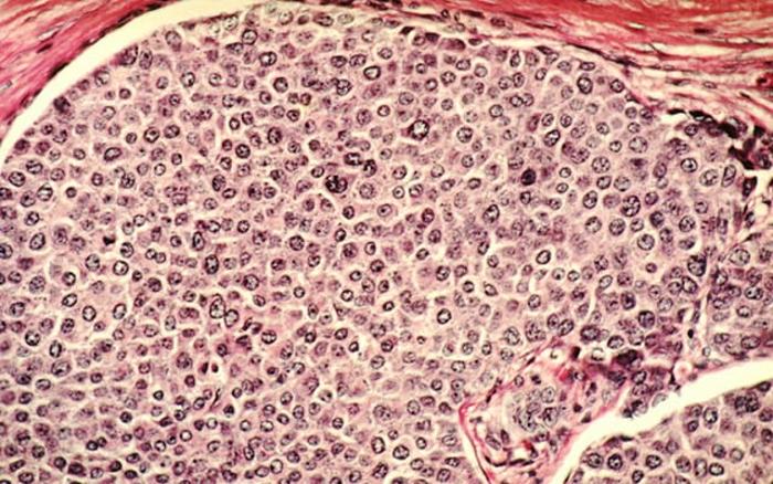 癌症在染色体混乱中茁壮成长的肿瘤原因