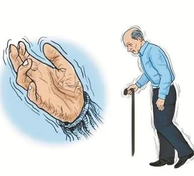 帕金森病患者音乐治疗的节奏方法