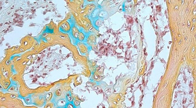 人类骨骼干细胞帮助骨骼和软骨生长