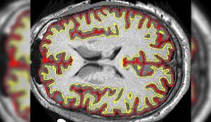 多发性硬化症药物减慢大脑收缩