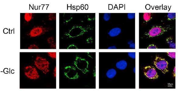 Nurr1蛋白可能成为药物开发的候选人